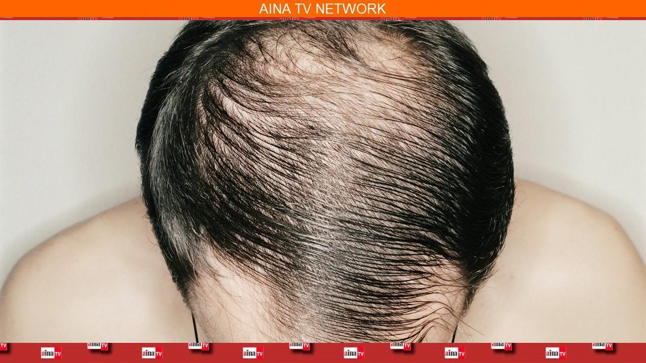 ���ట్ట ���ల ���ాకుండా ���ండాలంటే  Reasons For Bald Head