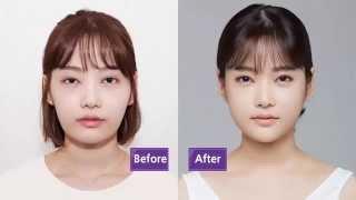 Jw Plastic Surgery Korea Revisional Eye Surgery Cheekbone Reduction