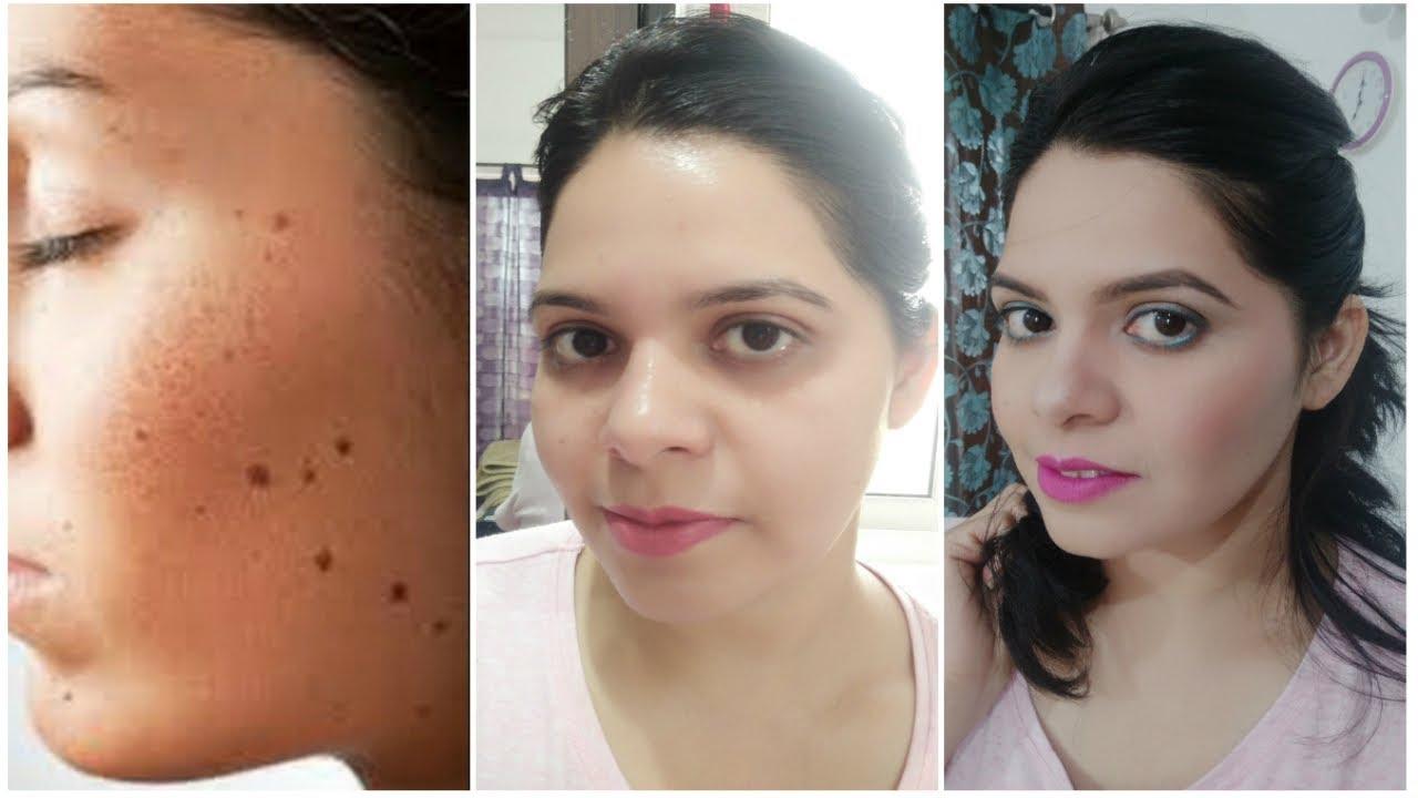 Facial black mole homeopath treatment, redhead sex queen