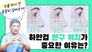 셀라성형외과★하안검수술, 안구 위치가 종요한 이유!! …