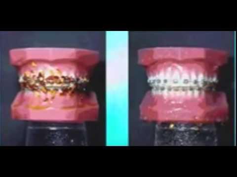 Limpeza De Dentes Com Aparelho Youtube