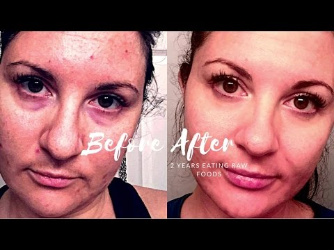 MY FACE CHANGED || ACNE GONE || ANTI AGING || RAW FOOD VEGAN