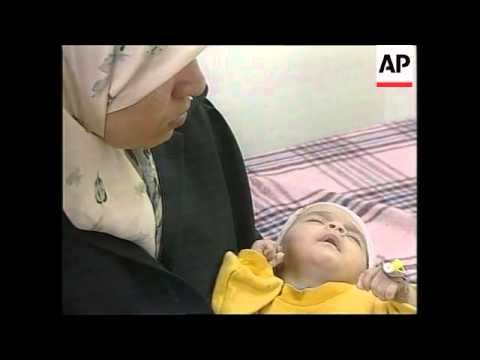 injured Palestinian mother and baby