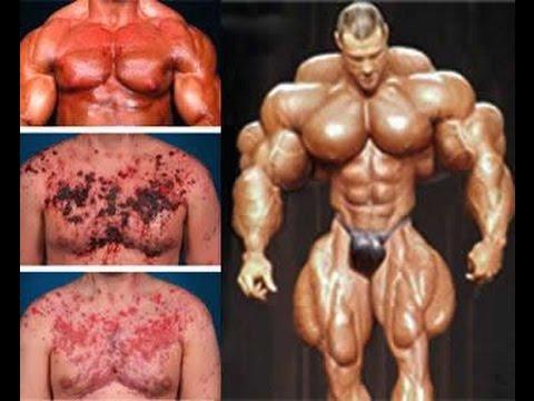 Esteroides, una Mala Opción para Aumentar los Músculos - YouTube