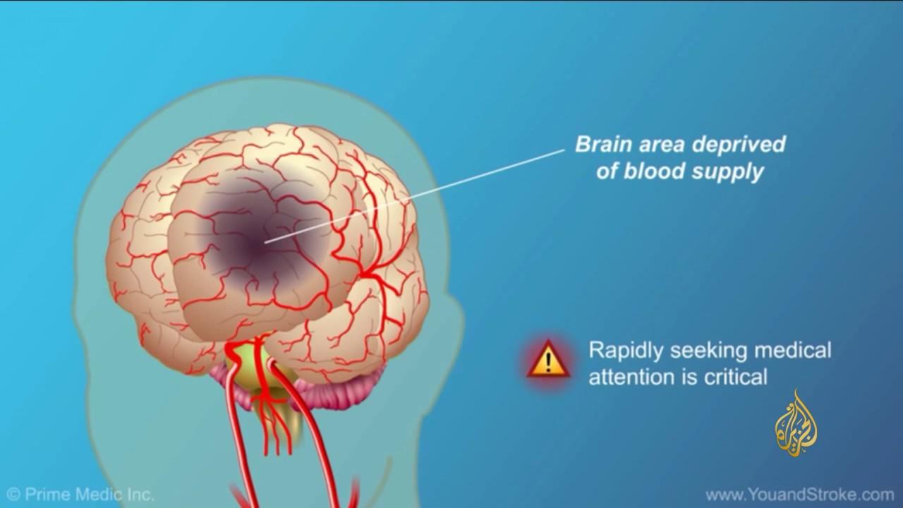هذا الصباح الجلطة الدماغية الإصابة العابرة نذير جلطات Youtube
