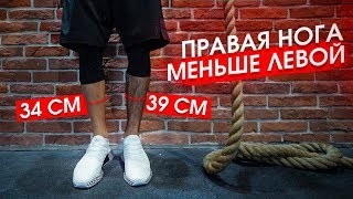 Правая нога МЕНЬШЕ левой /// Восстановление ПКС. Часть 2