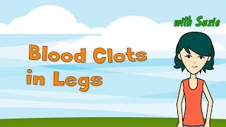 Blood Clots in Legs - 5 Recommended Ways to Treat These Conditions