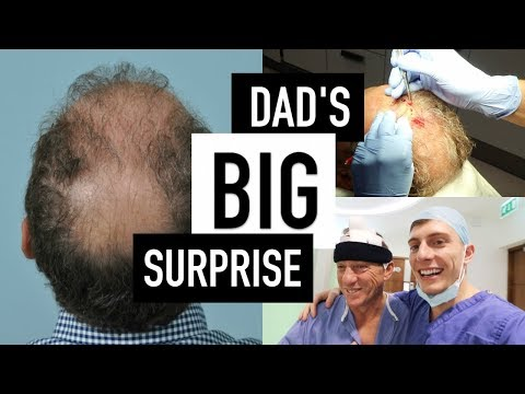 HAIR TRANSPLANT SURGERY STORY | father & son male pattern baldness