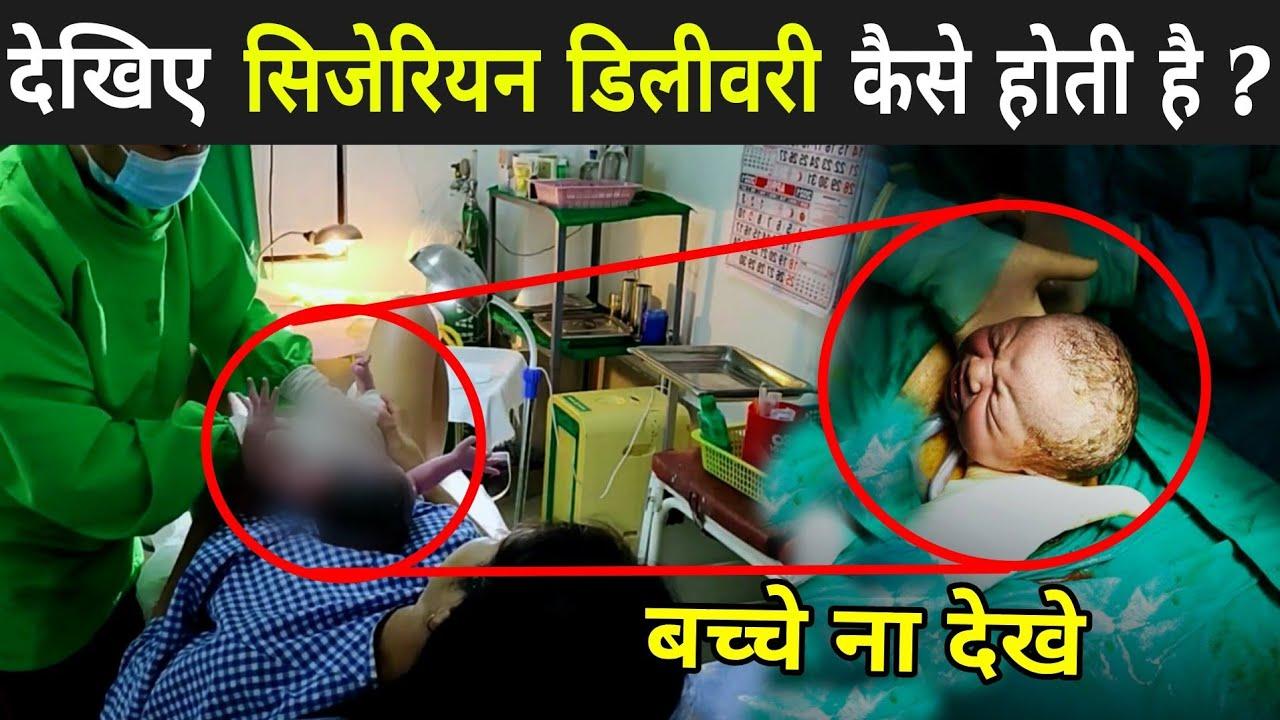 कैसे होती है सिजेरियन डिलीवरी हुआ खुलासा   Cesarean Delivery Hindi   C-Section Delivery