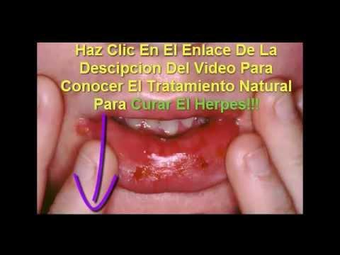 Como Eliminar El Herpes Labial Rapido Y Facil Youtube