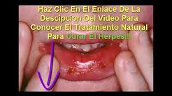 como eliminar el herpes labial rapido y facil