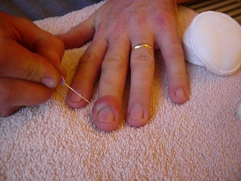 Infected cuticle drained. Also known as Paronychia