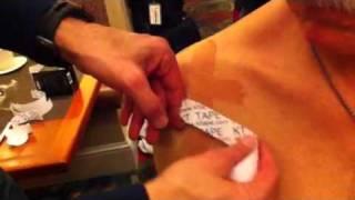 kt taping for shoulder