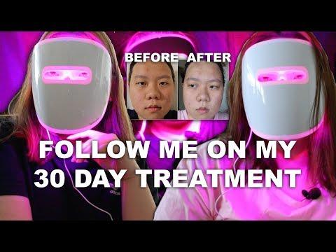 does-it-work?-neutrogena-light-therapy-acne-mask