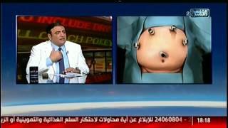الناس الحلوة | فنيات اختيار العملية المناسبة لعلاج السمنة المفرطة مع دكتور ياسر عبد الرحيم
