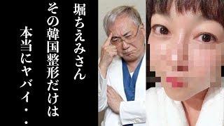 堀ちえみ 整形失敗 それを見た高須院長の発言に一同驚愕
