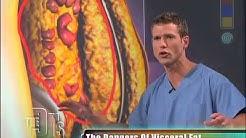 Visceral Fat Medical Course