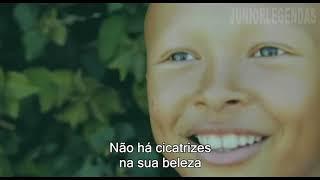 Alessia Cara - Scars To Your Beautiful Legendado
