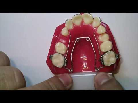 Wilson 3D Quad-Helix