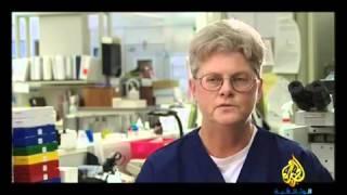 أمراض القرن - حلقة2