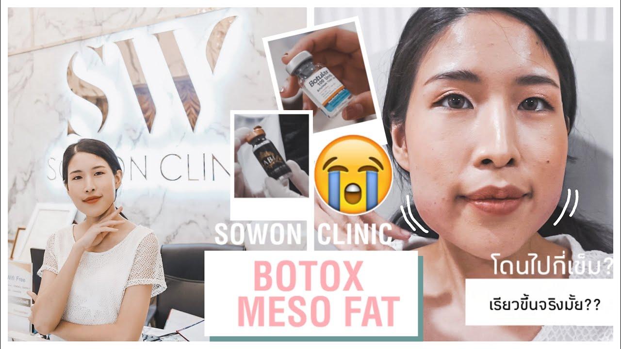 #รีวิวจริงเจ็บจริง กรามใหญ่ แก้มเยอะทำไงดี?? รีวิว BOTOX & MESO FAT ที่ SOWON CLINIC