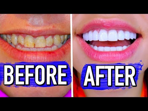 The truth about how I fixed my smile! Veneers Experience