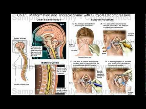 an analysis of update on chiari i malformation clinical manifestations diagnosis and treatment Chiari i malformation redefined: clinical and radiographic the chiari i malformation not exclude the diagnosis clinical manifestations of.