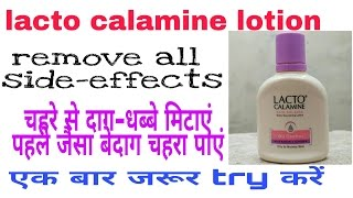 Lacto Calamine Lotion review hindi    Best For Remove Acne Pimple Darkspots Side Effects