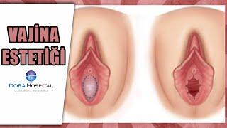 Genital Bölge Estetiği +18 - Op.Dr. Fatih Dağdelen