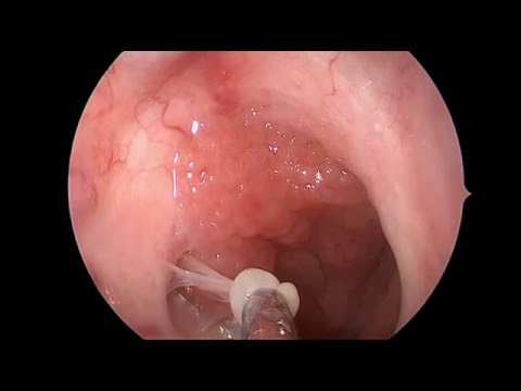 White Mucous In Throat 94
