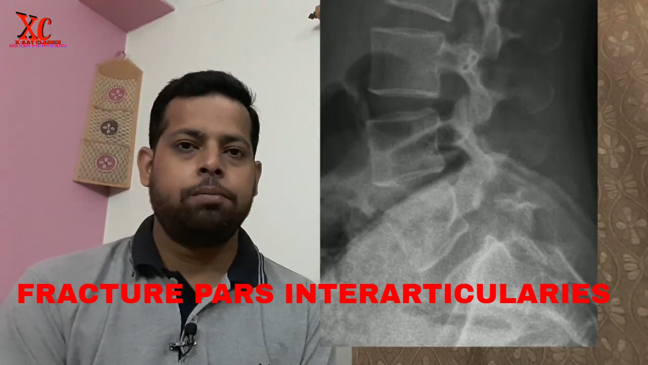 FRACTURE PARS INTERARTICULARIS, ANATOMY AND PHYSIOLOGY PART - 58 ...
