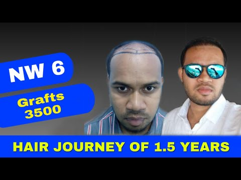 FUE Hair Transplant (3500 Grafts NW 6) By Dr. Rohan Das - GLO CLINIC
