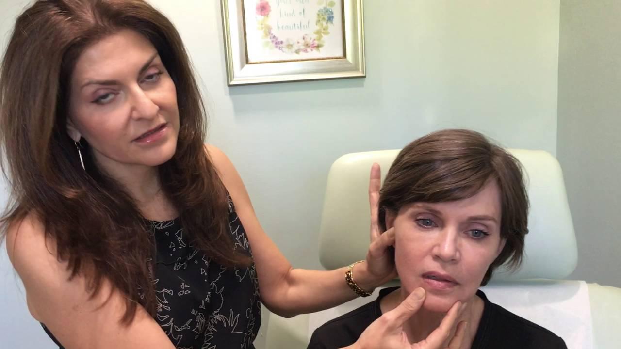 NEW! Silhouette Instalift™ procedure provides facial volume
