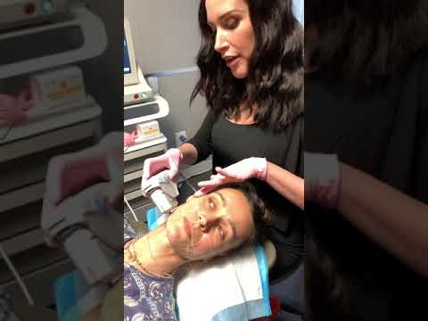 Ultherapy, Microneedling NYC, Dr. Halaas