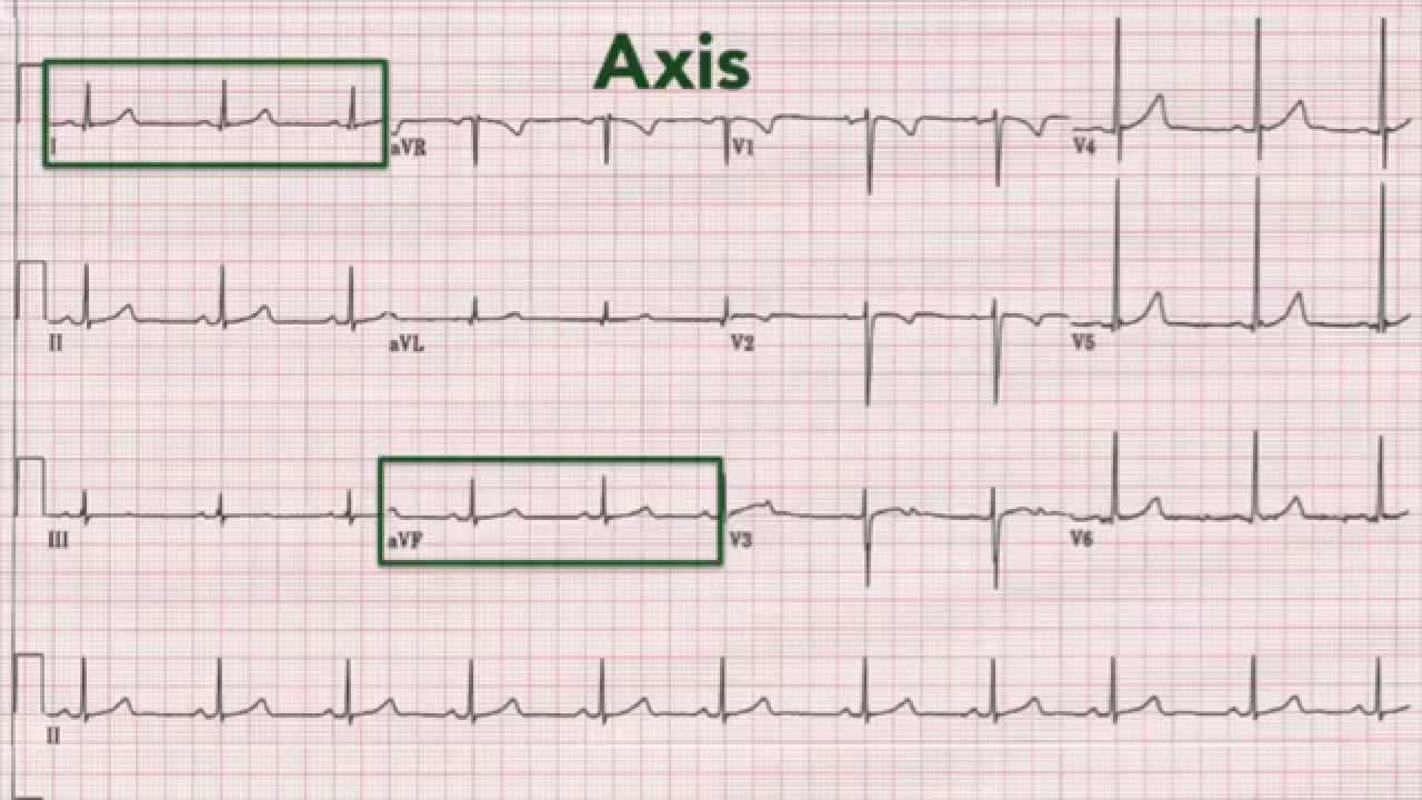 Normal Ecg Pattern Amazing Inspiration