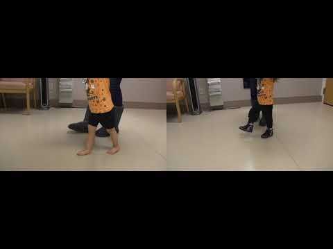 Before & After | Mild Knee Hyperextension | JumpStart Softback