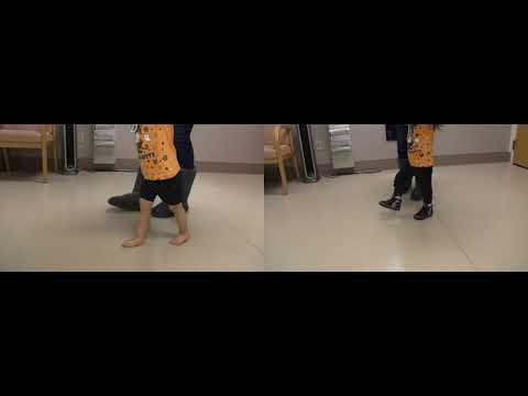 Before & After | Mild Knee Hyperextension | JumpStart Softback