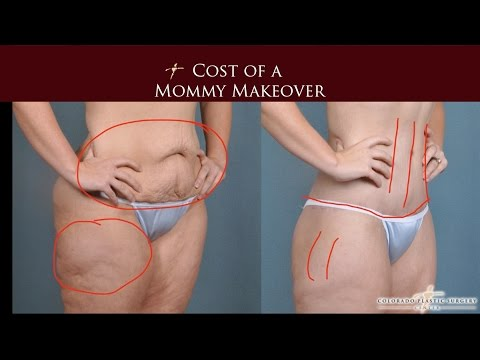 What is the Cost of a Mommy Makeover?