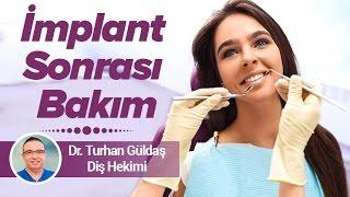 Dr. Turhan Güldaş - İmplant Sonrası Bakım