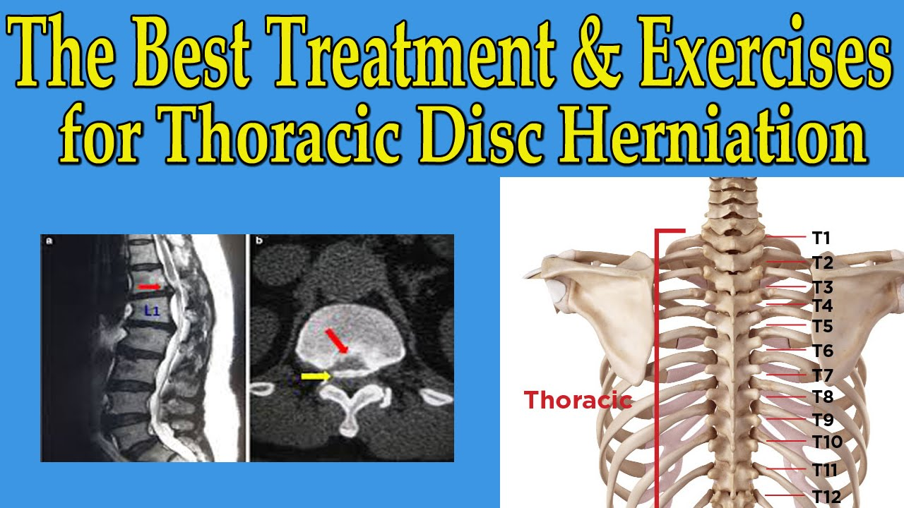 The Best Natural Treatment And Exercises For Thoracic Disc