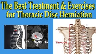 Best Natural Treatment And Exercises Thoracic Disc Herniation