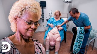 Asombrosos cambios por remoción de piel   Kilos Mortales: Sus vidas hoy   Discovery Latinoamérica
