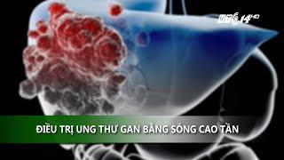 (VTC14)_ Điều trị ung thư gan bằng sóng cao tần