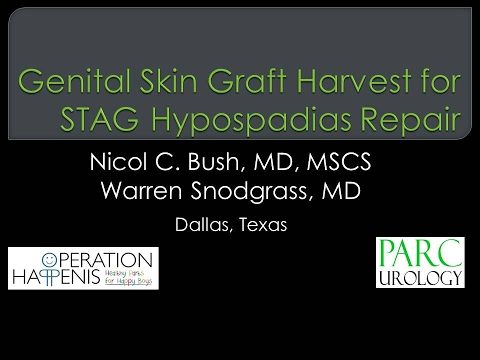 Full-thickness graft harvest for STAG hypospadias repair