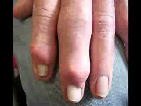 high uric acid and renal failure does gout affect your toes what over the counter pills work for gout