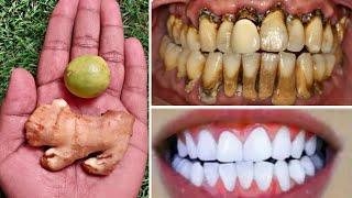 Teeth Whitening at Home in 3 Minutes | Make Dirty Yellow Teeth White and Shiny - 100% Effective