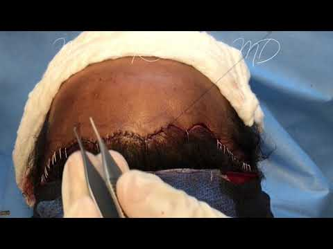 Forehead Reduction With Before And After Photos