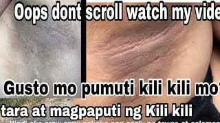 PAMPAPUTI NG KILI KILI UPDATE + TANGGAL PUTOK|Dark Whitening Under Arm Remedy|Kili kili Goals-