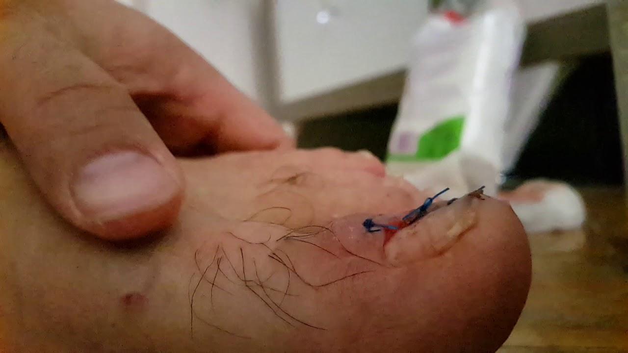 Tırnak Batması Ameliyatı Sonrası
