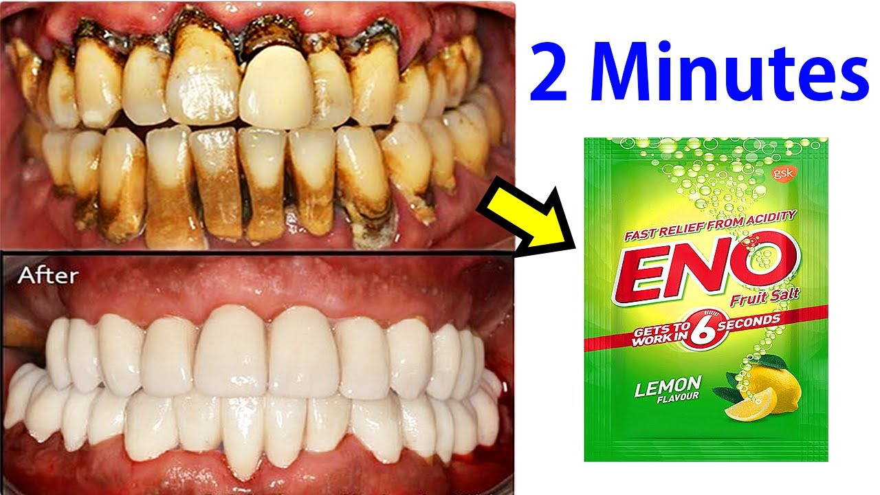 Apply Eno And Make Instant White Teeth In 2 Minutes Teeth